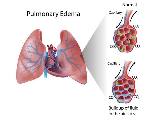 Thumbnail photo for The lungs and Immersion Pulmonary Oedema (IPO)