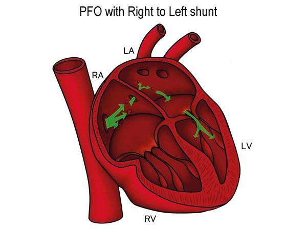 Thumbnail photo for The heart and Patent Foramen Ovale (PFO)